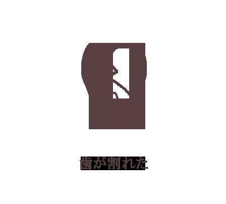 歯が割れた。歯根破折治療